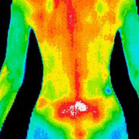 Thermography Houston