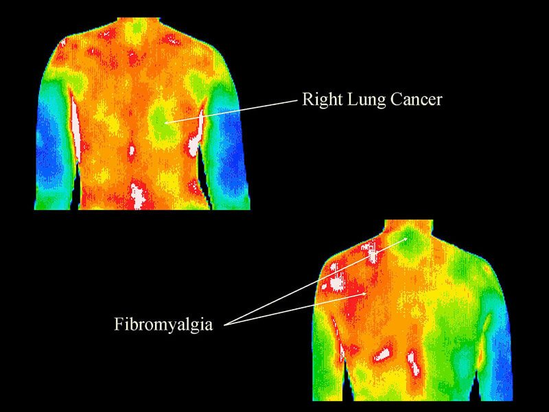 Thermography 11