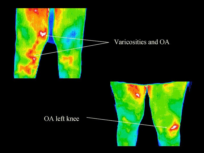 Thermography 12