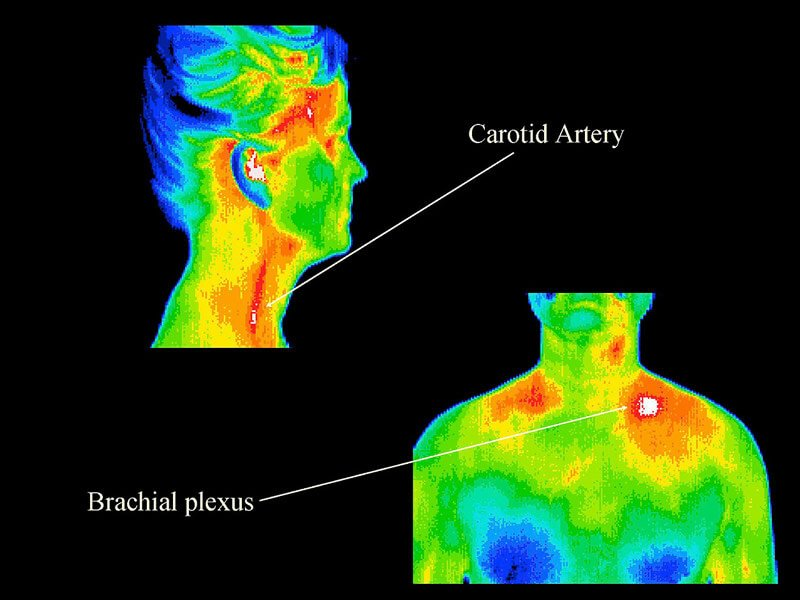 Thermography 14