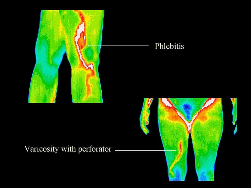 Thermography 4
