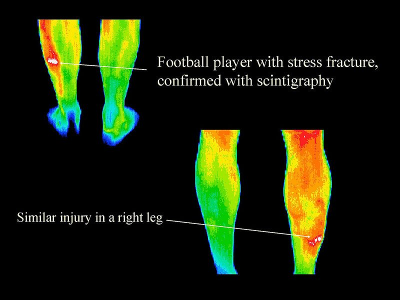 Thermography 5
