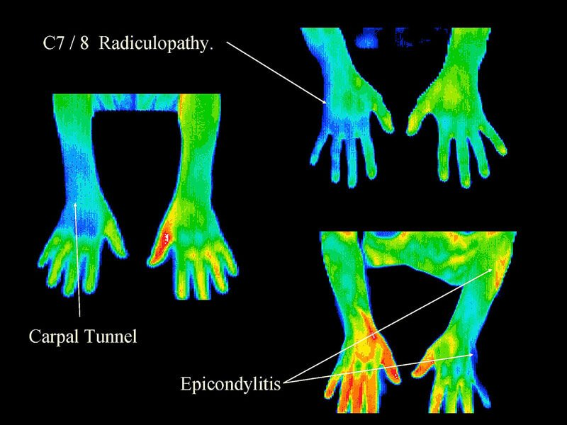 Thermography 7