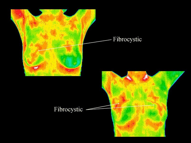 Thermography 9